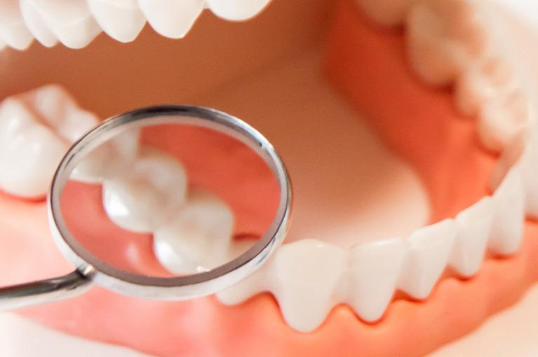 自覚症状のない初期の虫歯