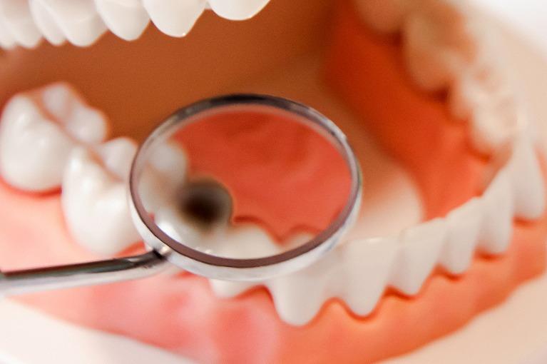 歯根も虫歯菌に侵された段階